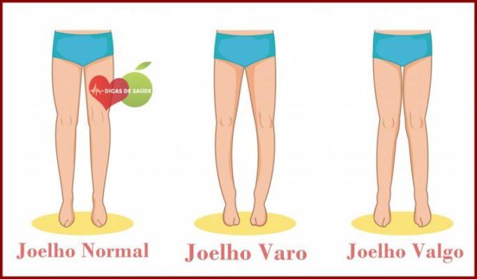 Tratamento para pernas arqueadas